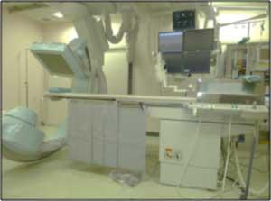 腹部血管撮影